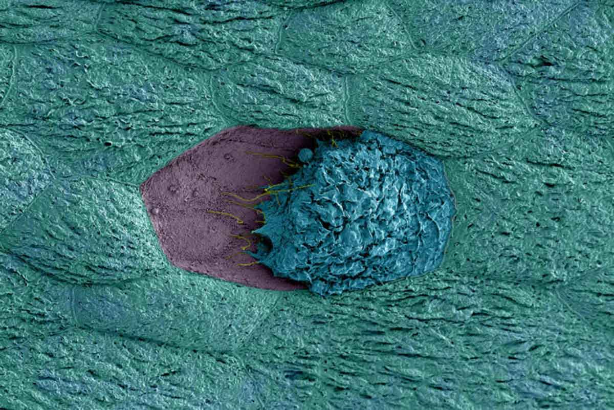 a bladder cell (blue) that has been exposed to G. vaginalis is dying and detaching from its neighboring cells (teal), revealing immature cells below (purple).